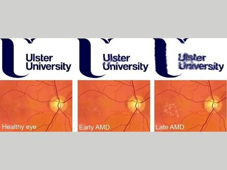 Age-Related Macular Degeneration: Are We Beginning To See The Light? A Lecture